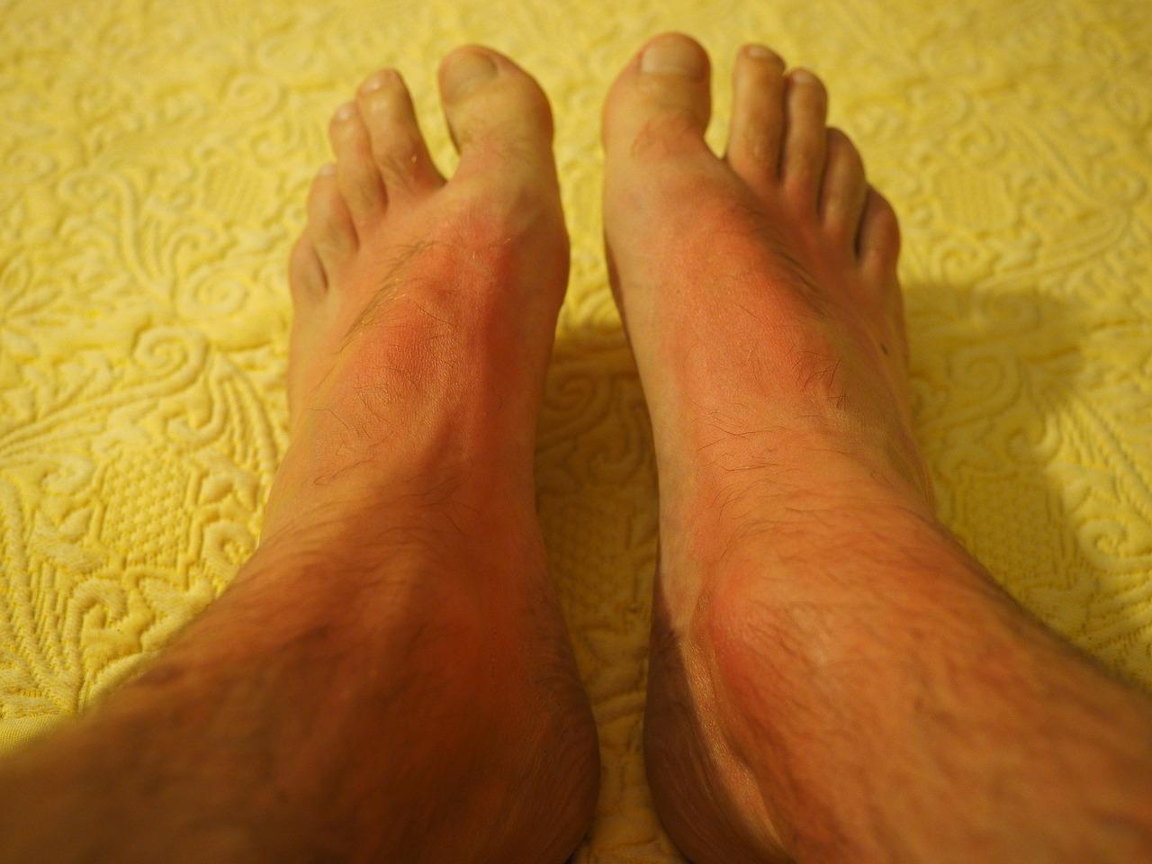 Jak poradzić sobie z atopowym zapaleniem skóry?